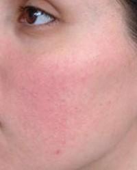 vörös foltok az arcon homeopátia száraz vörös foltok a felnőttek lábán