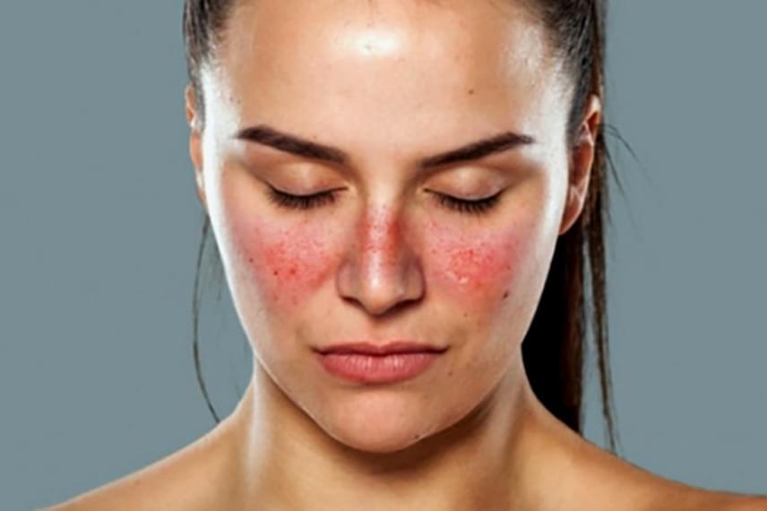 tünet vörös foltok az arc bőrén