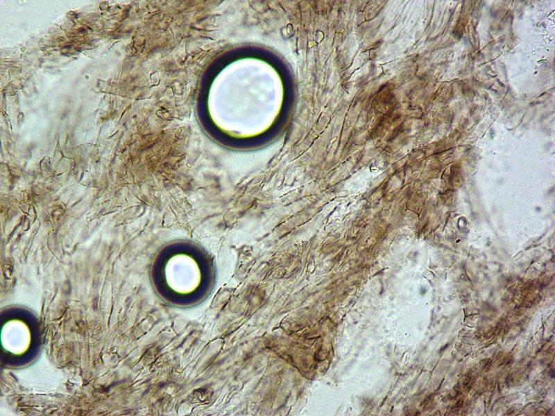 kenőcs pikkelysömörhöz a térdén pikkelysömör kezelése acyclovirrel