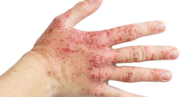 kerek piros folt a kézen