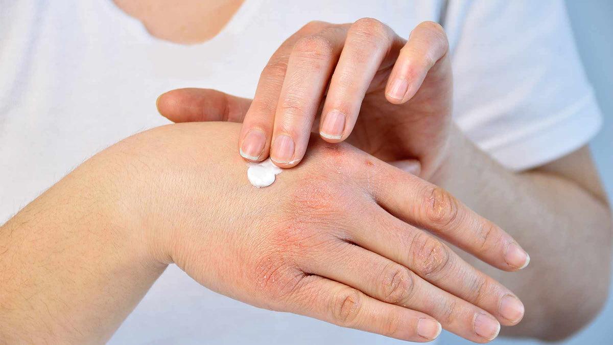 kenőcs az arcon pikkelysömör vagy ekcéma esetén bőrproblémák lelki okai