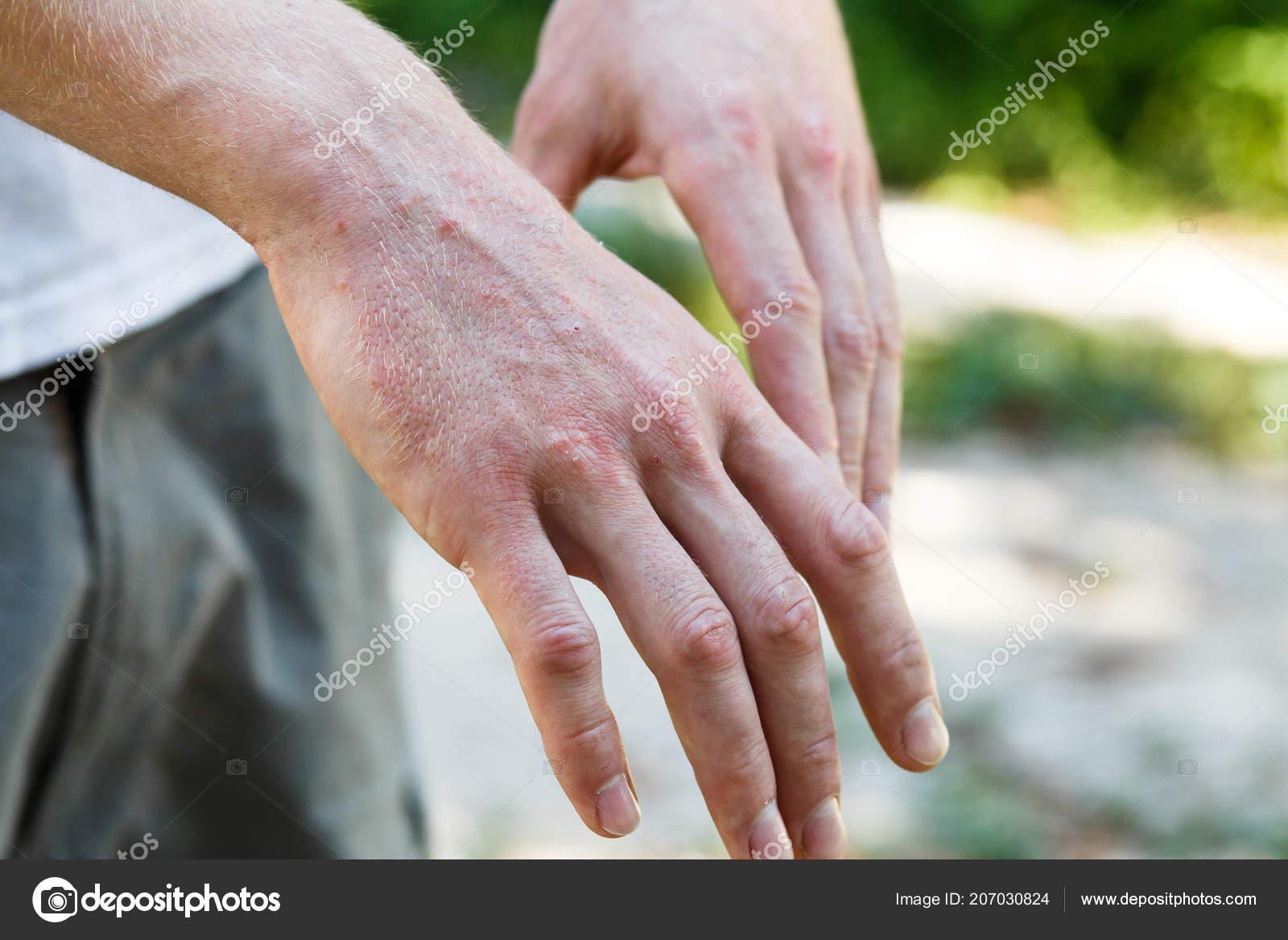 plakkos psoriasis fotók s kezels