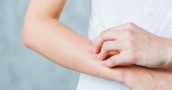 a kezén egy piros folt viszket és fáj