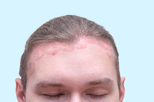 pikkelysömör a fejbőrön tünetek és kezelés népi gyógymódok a guttate pikkelysömörére