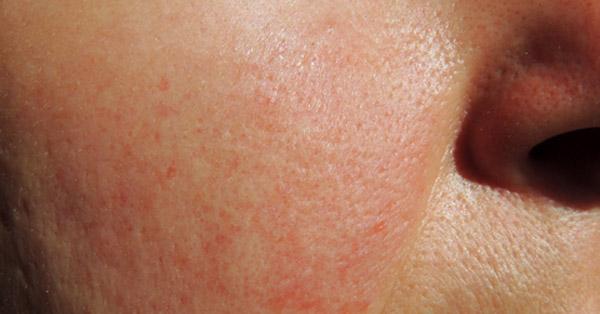 Melyik alapra pályázhat a pikkelysömör kezelésére pikkelysömör a haj otthoni kezelsben