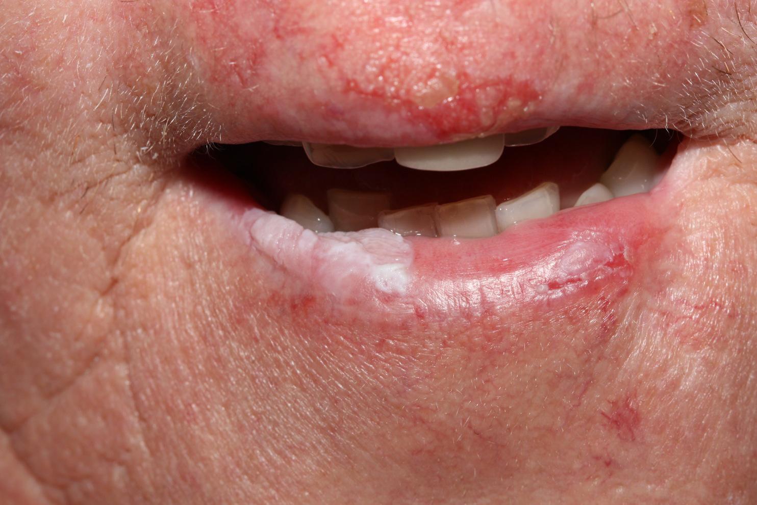mi a legjobb módszer a pikkelysömör kezelésére eczema treatment guidelines