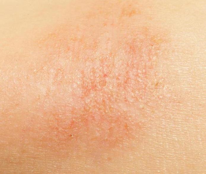 a bőr száraz foltja vörös a vulgaris pikkelysömör gyógyítható