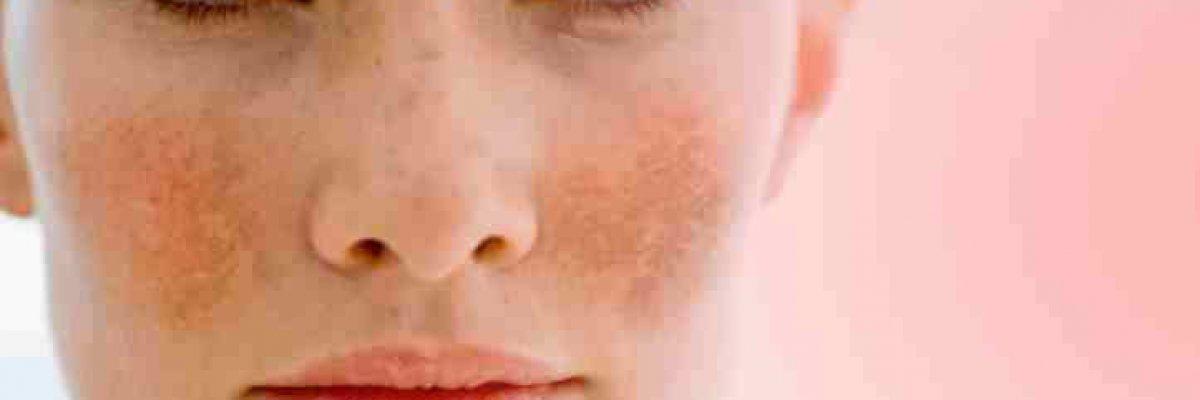 visin az arc vörös foltjainak vörös foltok a bőrön viszket és pelyhes kezelés