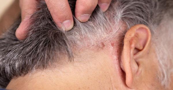 gyógytea pikkelysömör kezelése vörös folt jelent meg az arcon a szem közelében