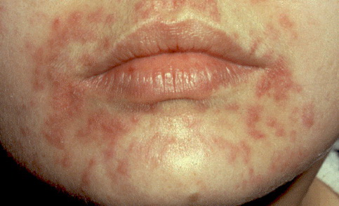 az arcon lévő vörös foltok és a hámlás okai vörös foltok jelennek meg az arcon és viszketnek mi ez