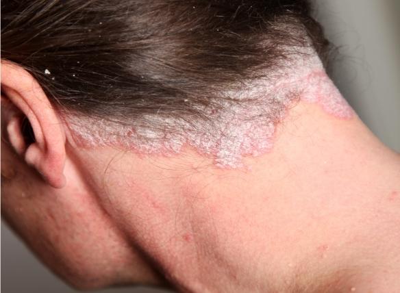 Pikkelysömör a fejbőrön: mit tehetünk? - Fejbőr psoriasis kezelése hagymahéjjal