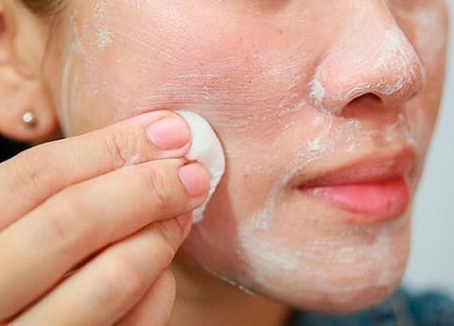 monica pikkelysömör kezelése helyi kezelés a fejbőr pikkelysömörére