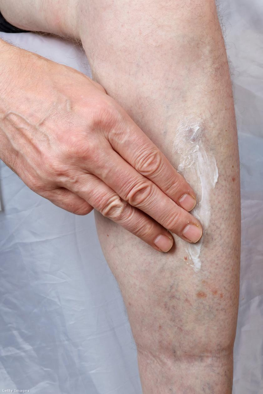 irritáció a lábakon vörös foltok