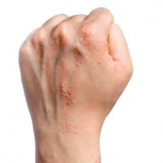 infliximab pikkelysömör kezelése új a pikkelysmr kezelsrl