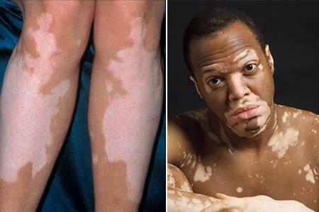 leégés után vörös foltok jelentek meg a lábakon