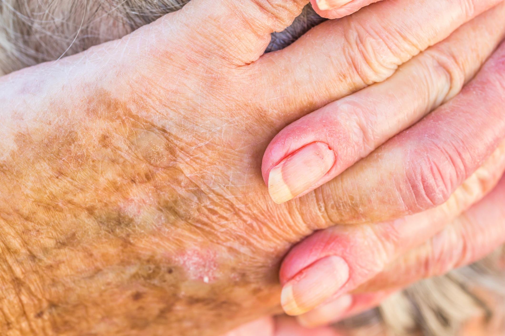 mit jelentenek a kéz piros foltjai