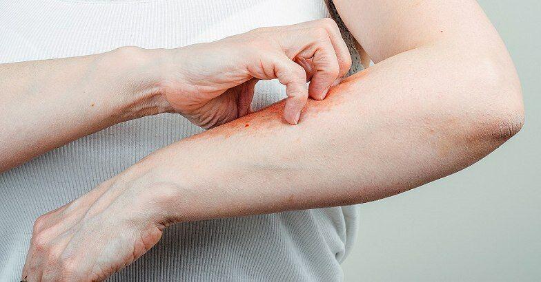 organikus pikkelysömör hogyan kell kezelni vörös foltok és tech az arcon