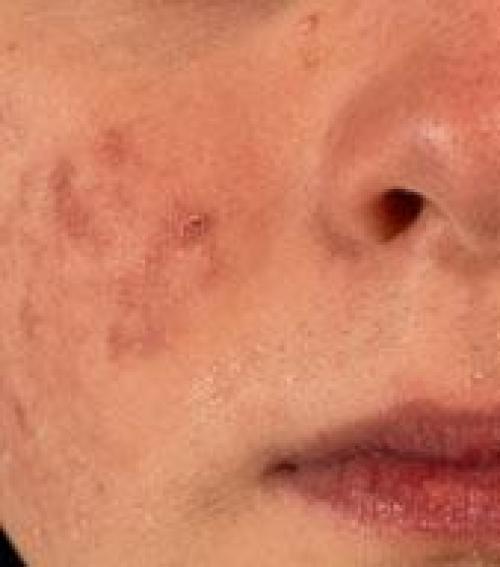 vörös foltok az arcon feszesebbé teszik a bőrt)