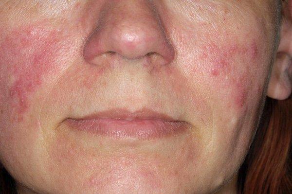 vörös foltok az arcon feszesebbé teszik a bőrt