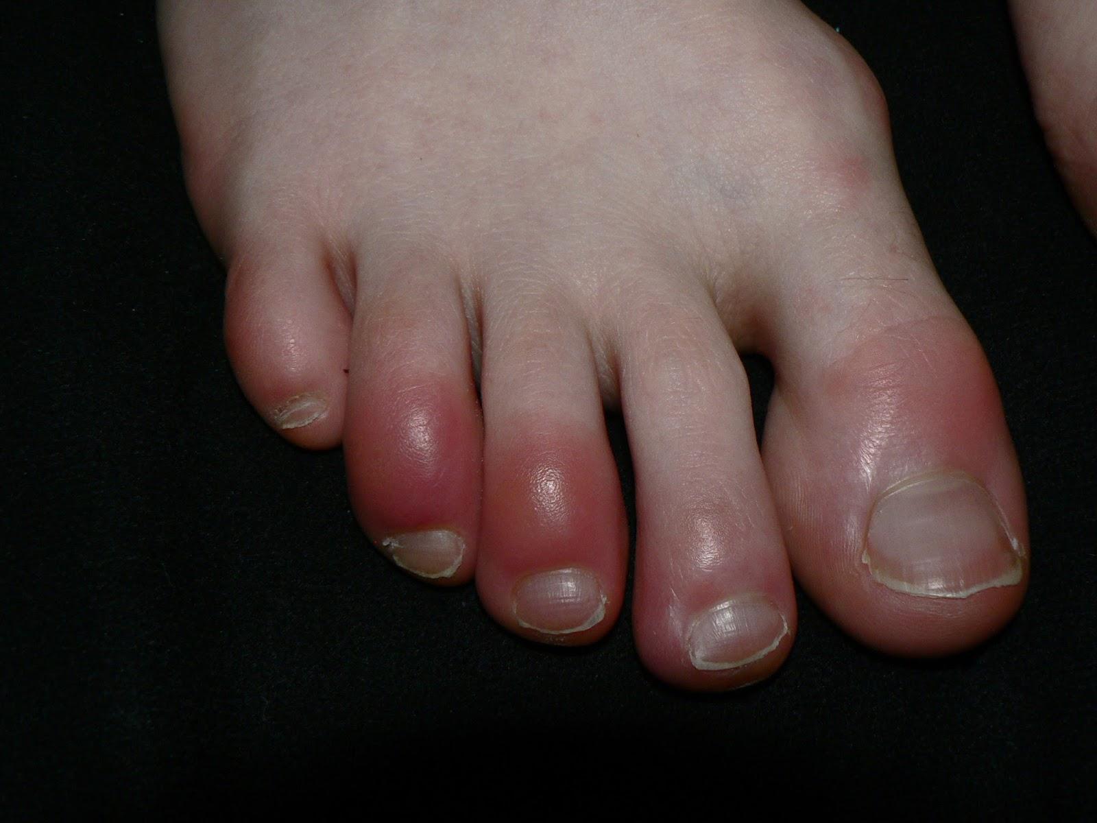 vörös folt a lábán a lábujjak közelében)