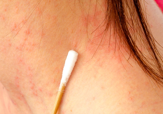 Minden bőrkiütés ekcéma? - Allergiaközpont